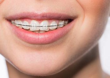 ortodonzia-infantile-2