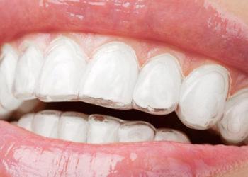 ortodonzia-invisalign-3