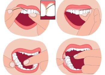 Parodontologia_7