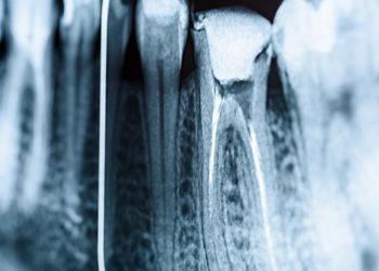 endodonzia-2