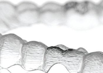 ortodonzia-invisalign-2